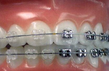 Благодаря этому удалось снизить нагрузку на зубо-челюстную систему в несколько раз, при этом перемещение зубов...